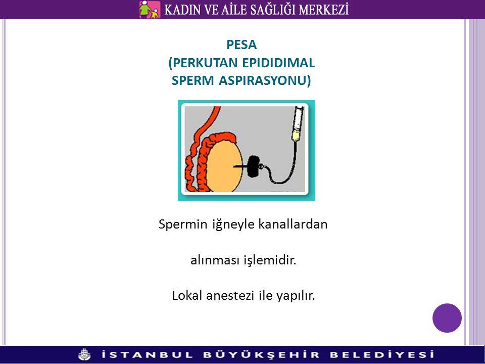 PESA (PERKUTAN EPIDIDIMAL SPERM ASPIRASYONU)