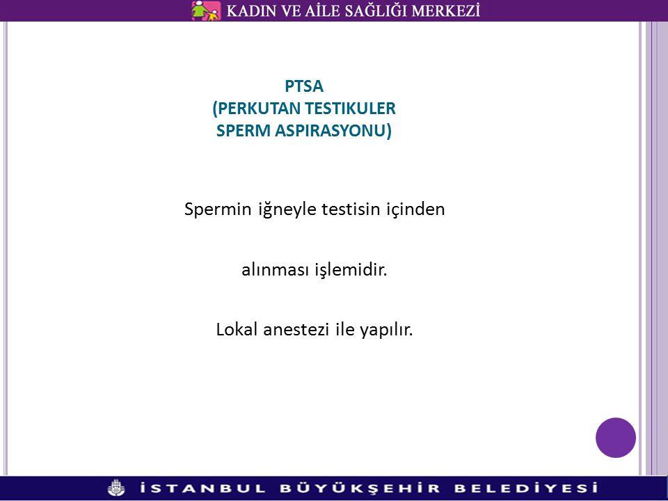 PTSA (PERKUTAN TESTIKULER SPERM ASPIRASYONU)