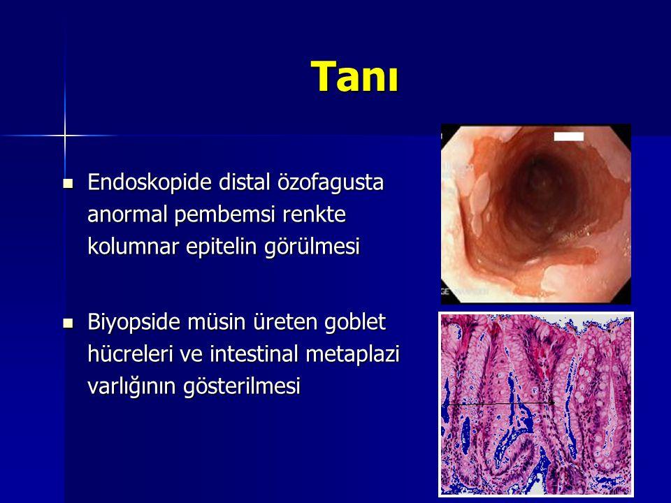 Tanı Endoskopide distal özofagusta anormal pembemsi renkte kolumnar epitelin görülmesi.