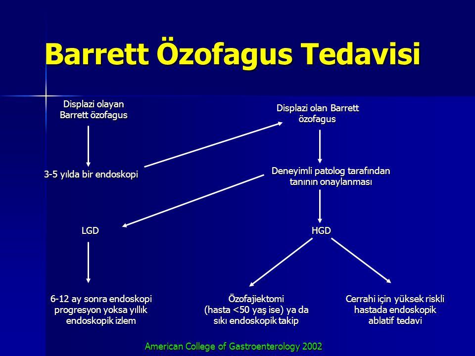 Barrett Özofagus Tedavisi