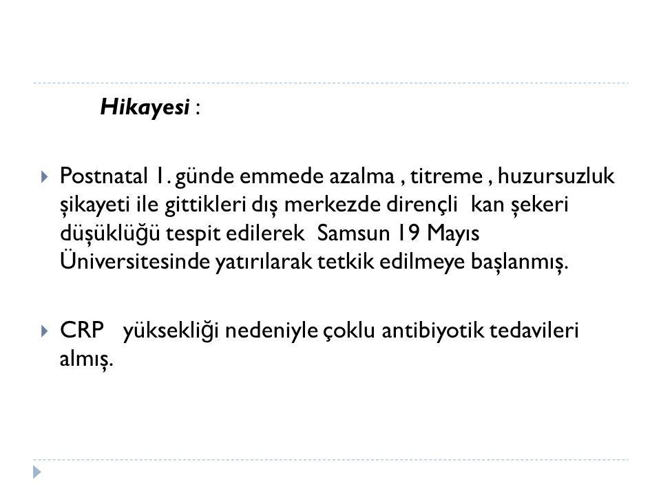 Hikayesi :