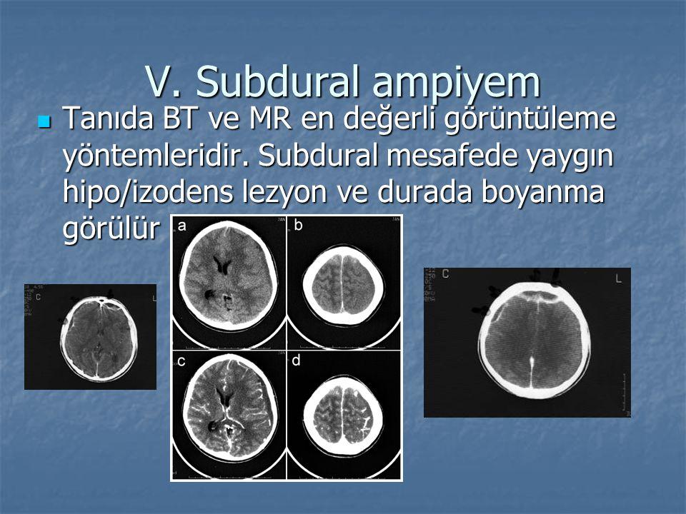 V. Subdural ampiyem Tanıda BT ve MR en değerli görüntüleme yöntemleridir.