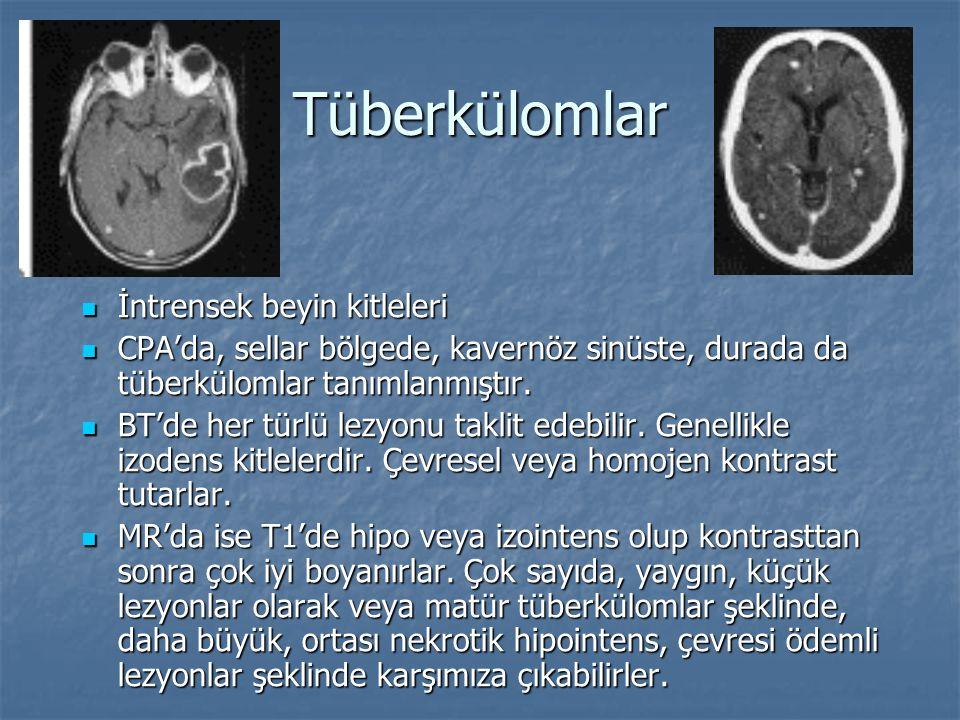Tüberkülomlar İntrensek beyin kitleleri