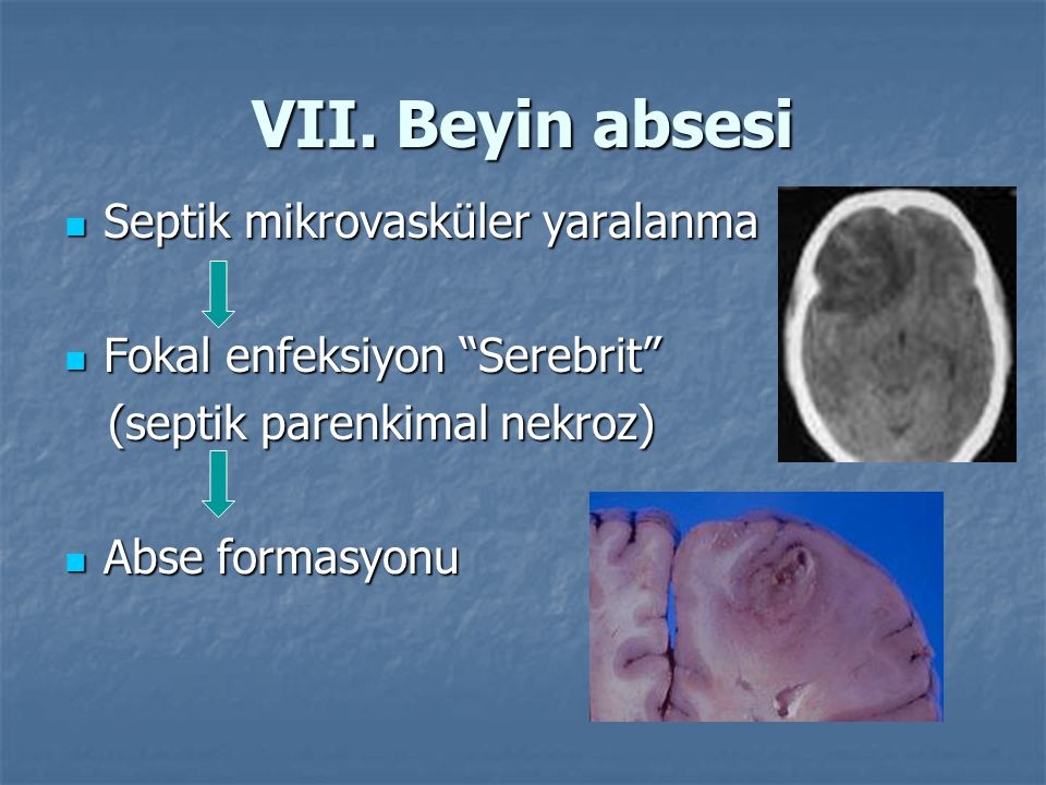 VII. Beyin absesi Septik mikrovasküler yaralanma