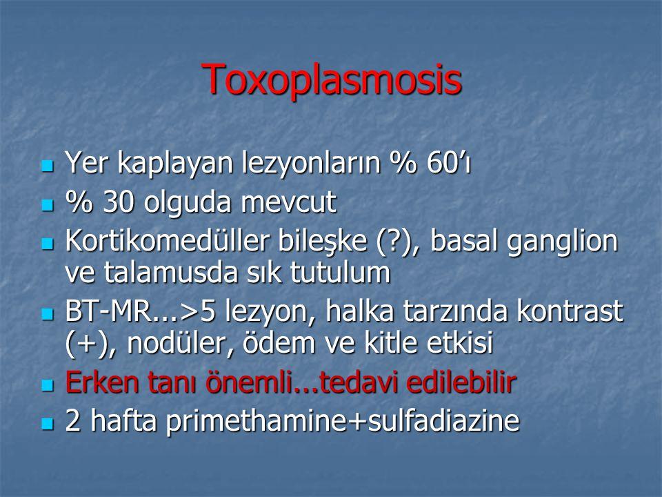 Toxoplasmosis Yer kaplayan lezyonların % 60'ı % 30 olguda mevcut