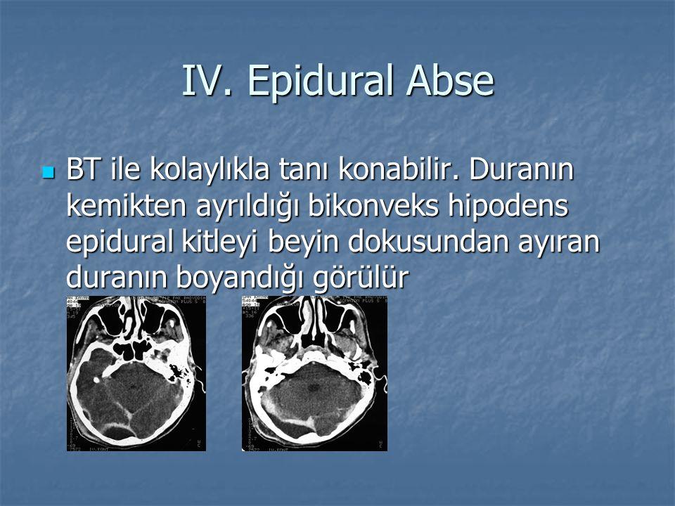 IV. Epidural Abse