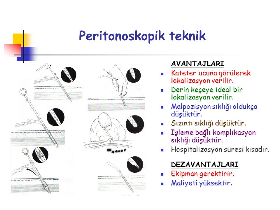 Peritonoskopik teknik