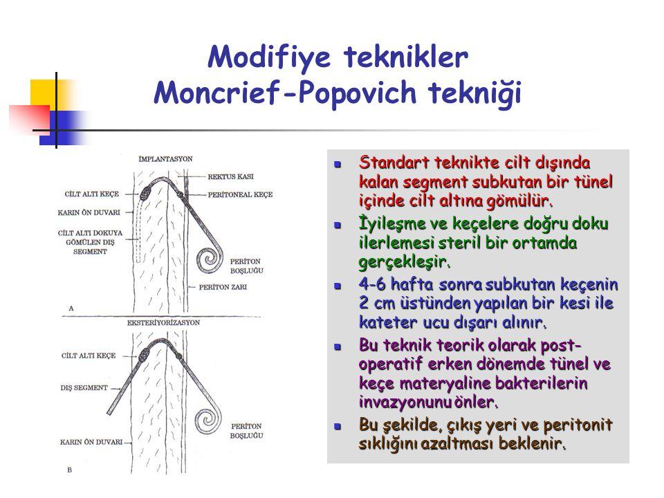 Modifiye teknikler Moncrief-Popovich tekniği