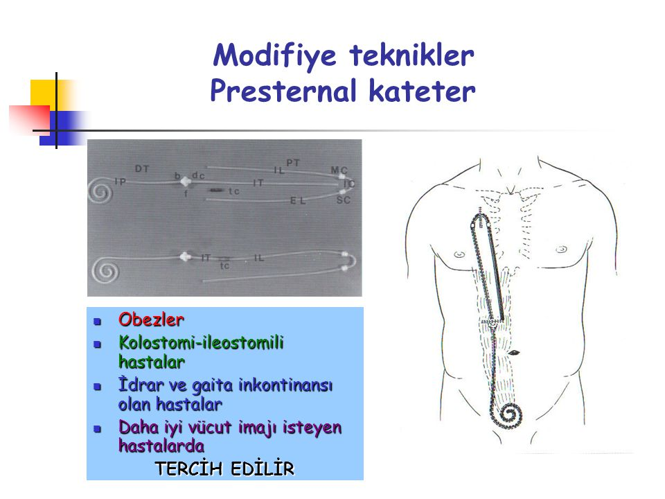 Modifiye teknikler Presternal kateter
