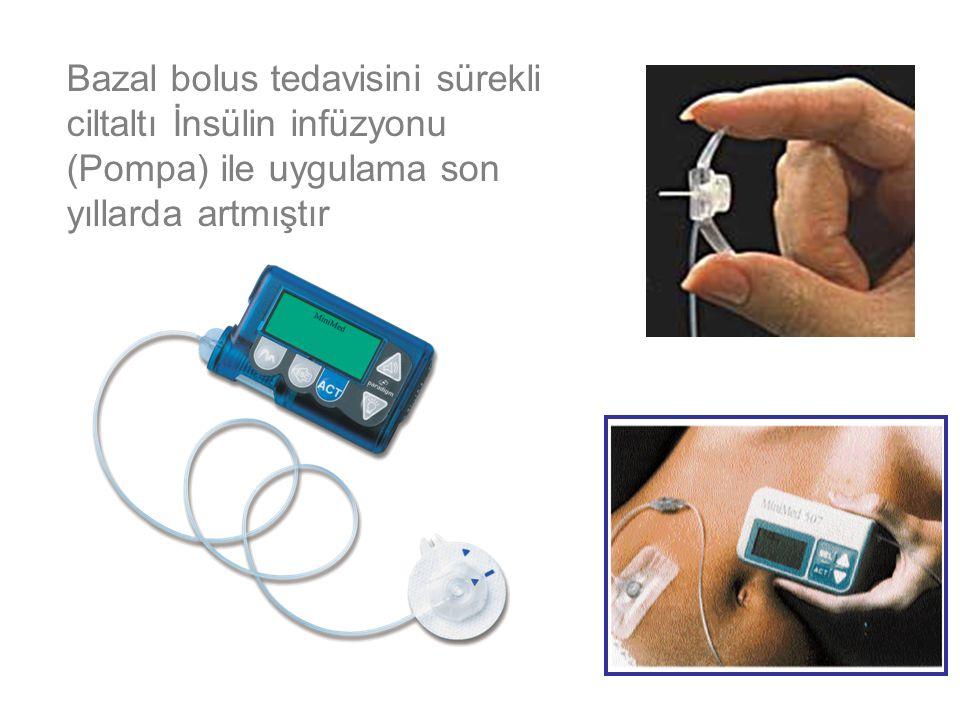 Bazal bolus tedavisini sürekli ciltaltı İnsülin infüzyonu (Pompa) ile uygulama son yıllarda artmıştır