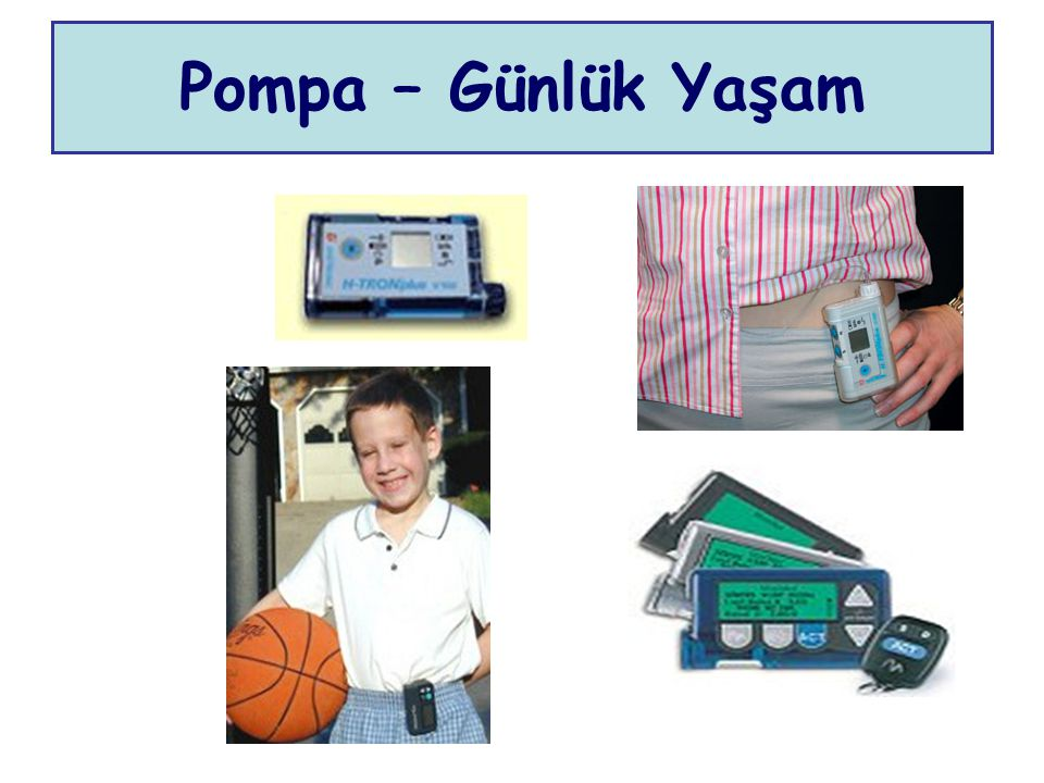Pompa – Günlük Yaşam