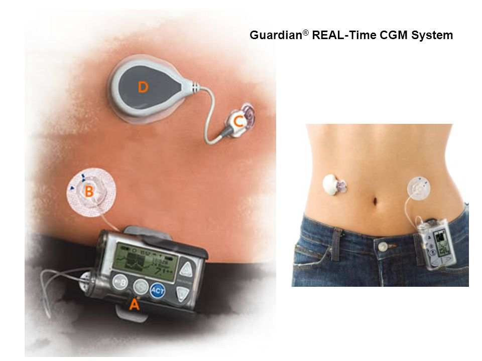 Guardian® REAL-Time CGM System