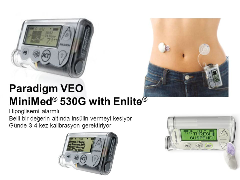 MiniMed® 530G with Enlite®