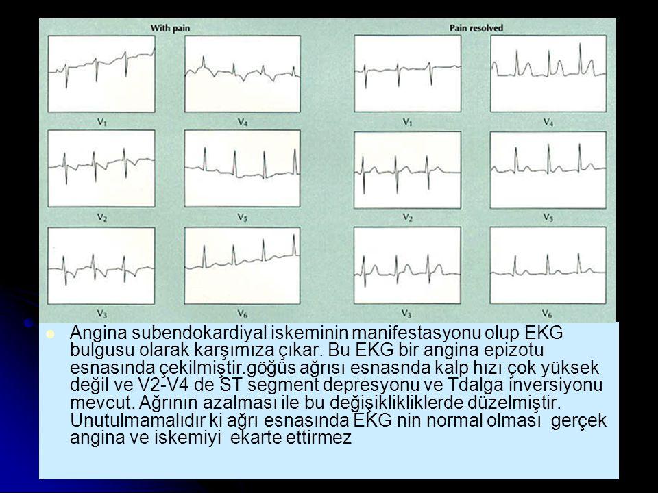 Angina subendokardiyal iskeminin manifestasyonu olup EKG bulgusu olarak karşımıza çıkar.