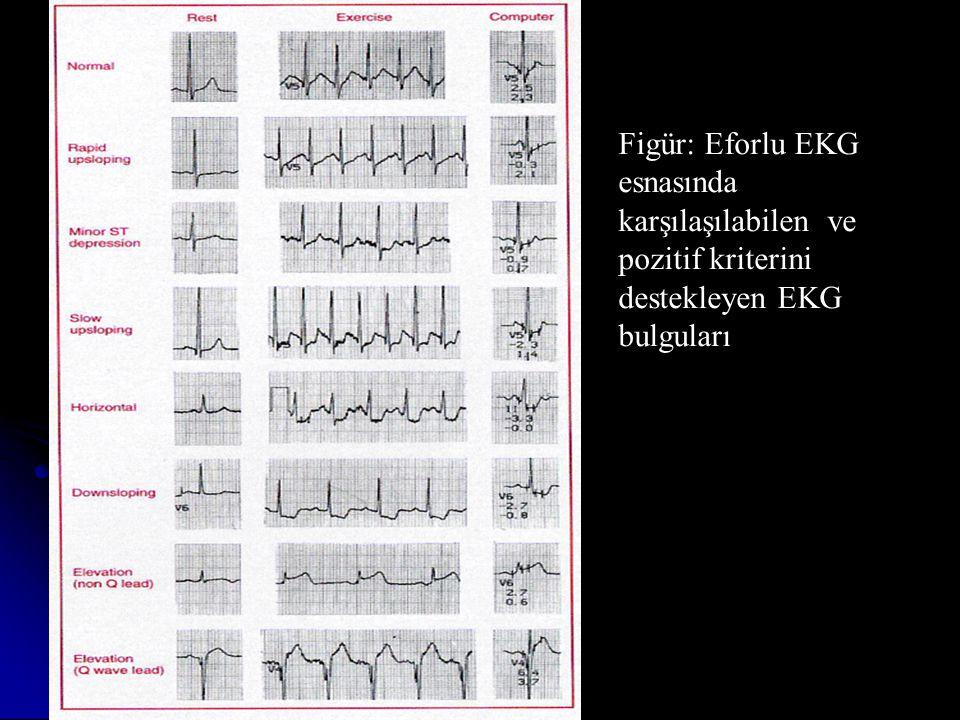Figür: Eforlu EKG esnasında karşılaşılabilen ve pozitif kriterini destekleyen EKG bulguları