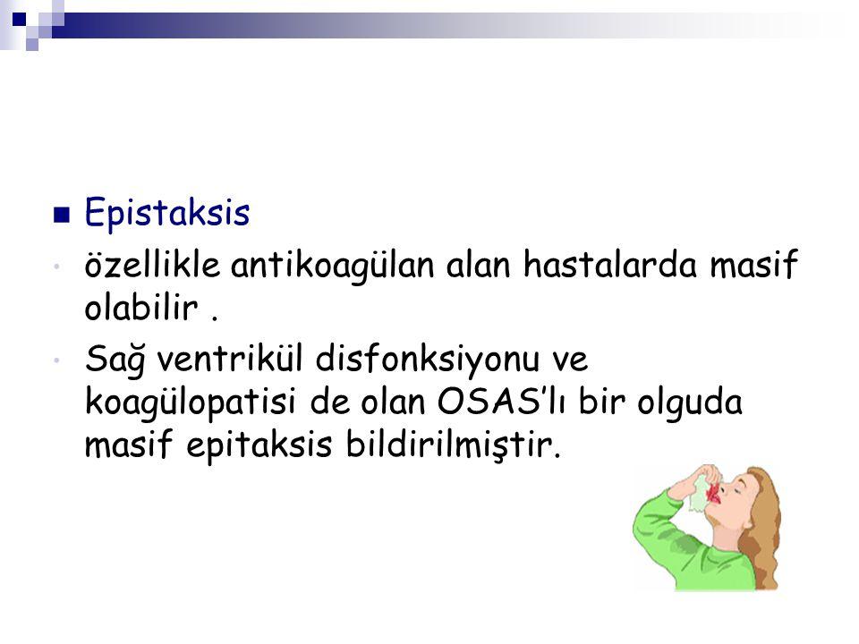 Epistaksis özellikle antikoagülan alan hastalarda masif olabilir .