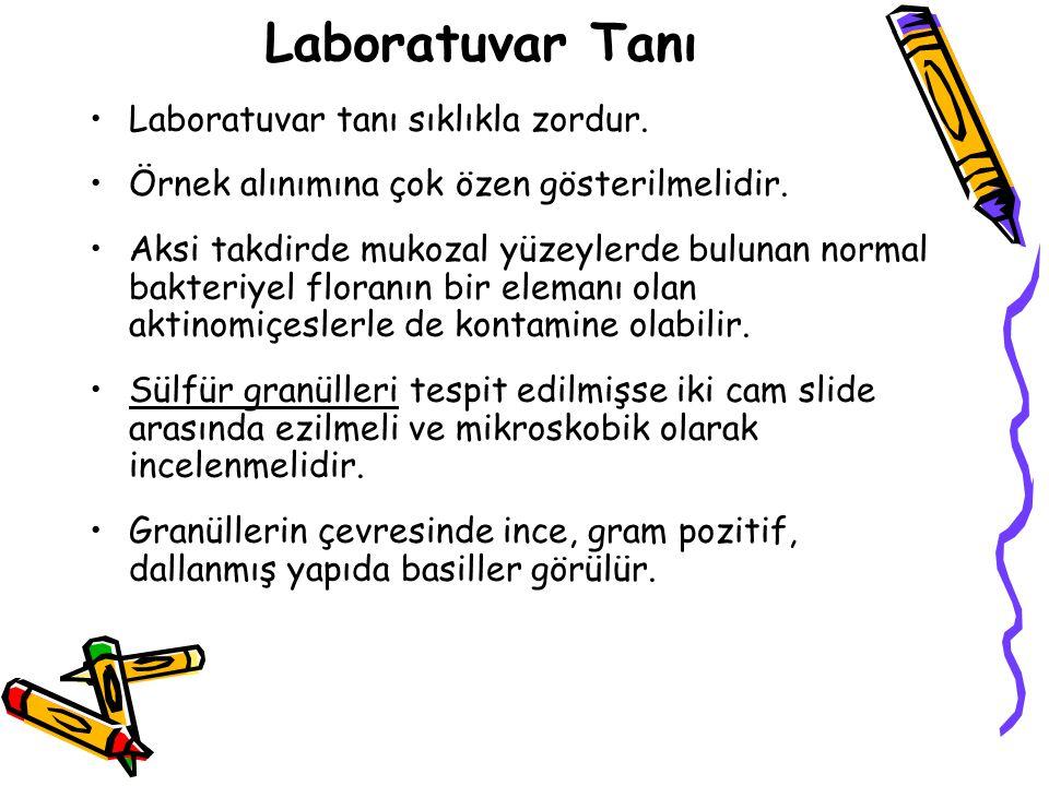Laboratuvar Tanı Laboratuvar tanı sıklıkla zordur.