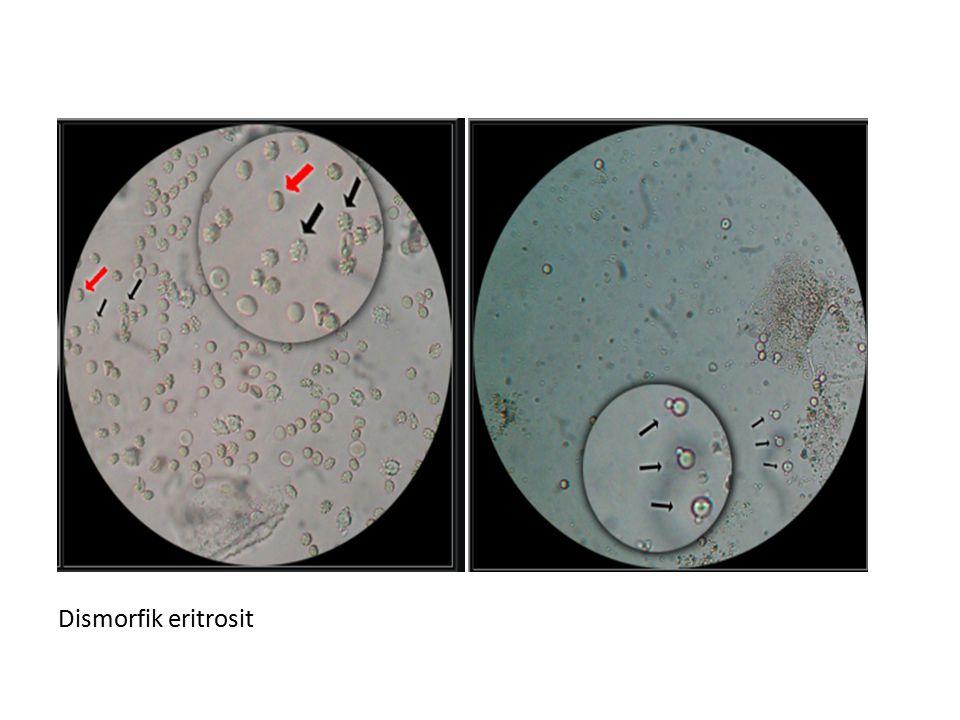 Dismorfik eritrosit