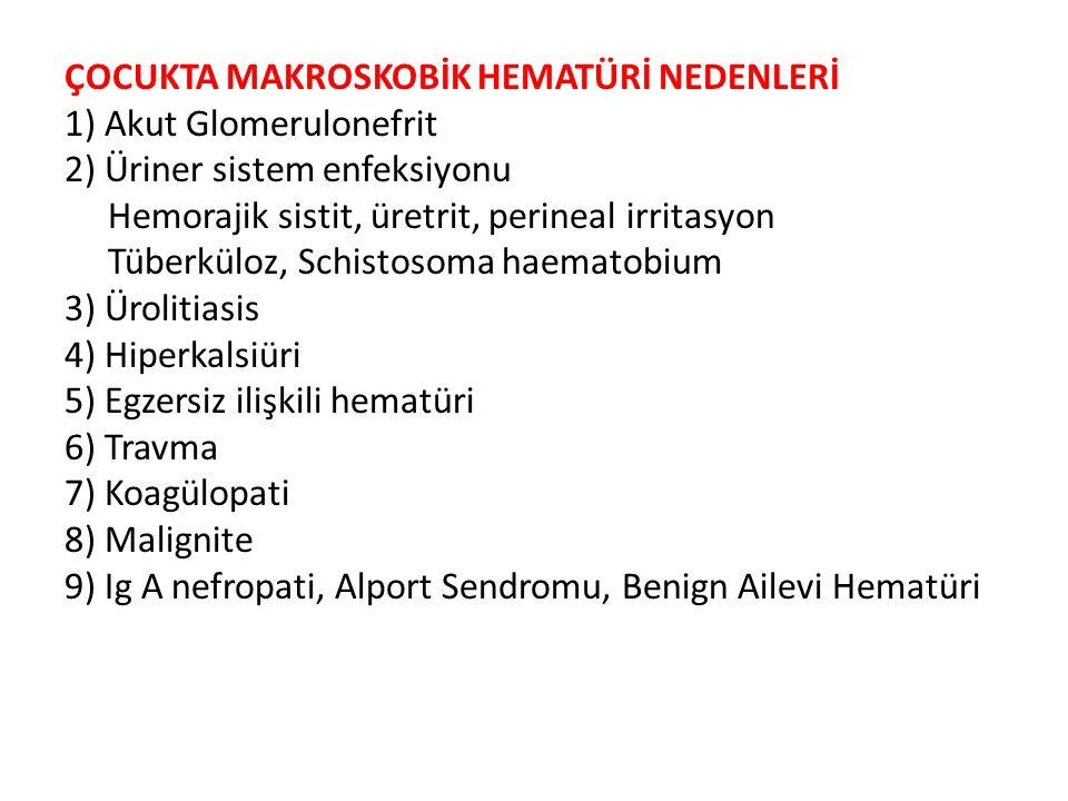 ÇOCUKTA MAKROSKOBİK HEMATÜRİ NEDENLERİ 1) Akut Glomerulonefrit 2) Üriner sistem enfeksiyonu Hemorajik sistit, üretrit, perineal irritasyon Tüberküloz, Schistosoma haematobium 3) Ürolitiasis 4) Hiperkalsiüri 5) Egzersiz ilişkili hematüri 6) Travma 7) Koagülopati 8) Malignite 9) Ig A nefropati, Alport Sendromu, Benign Ailevi Hematüri