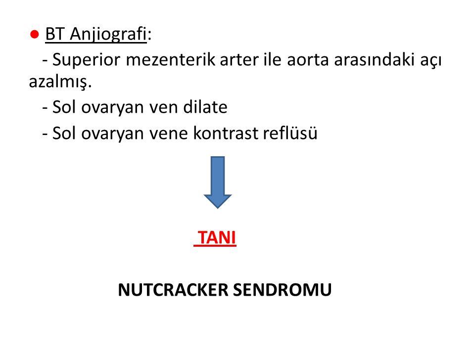 ● BT Anjiografi: - Superior mezenterik arter ile aorta arasındaki açı azalmış.