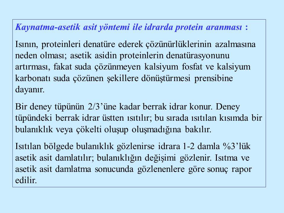 Kaynatma-asetik asit yöntemi ile idrarda protein aranması :