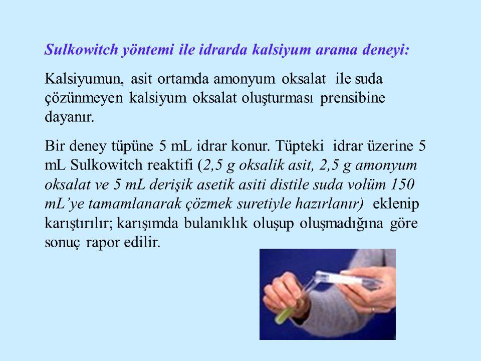 Sulkowitch yöntemi ile idrarda kalsiyum arama deneyi:
