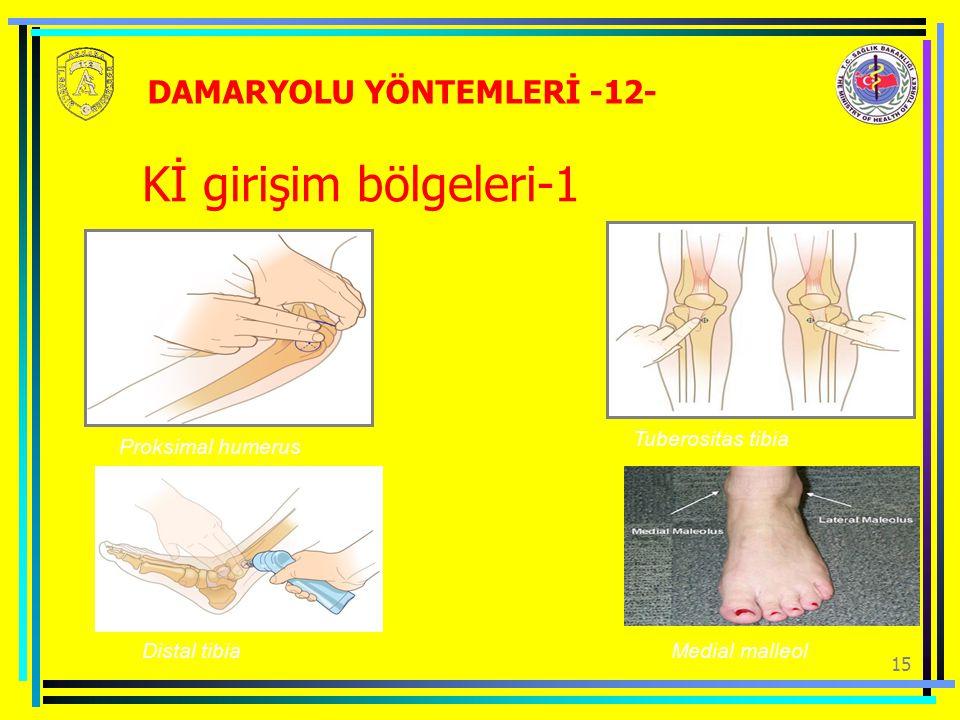 Kİ girişim bölgeleri-1 DAMARYOLU YÖNTEMLERİ -12- Tuberositas tibia