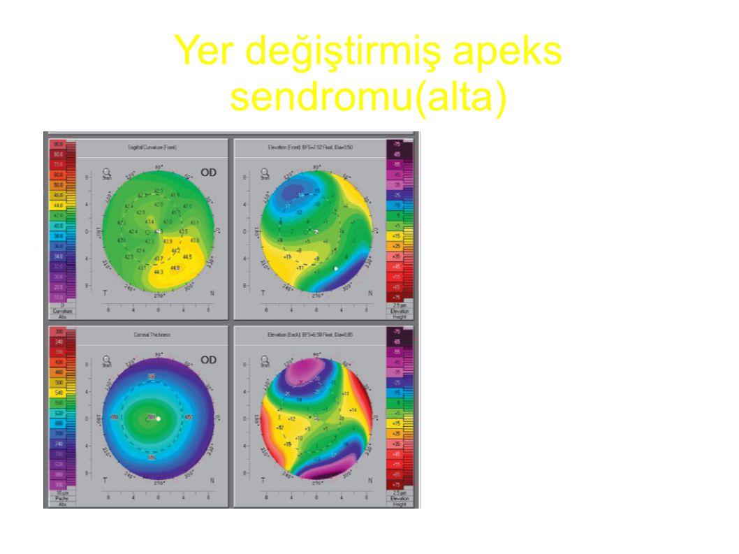 Yer değiştirmiş apeks sendromu(alta)
