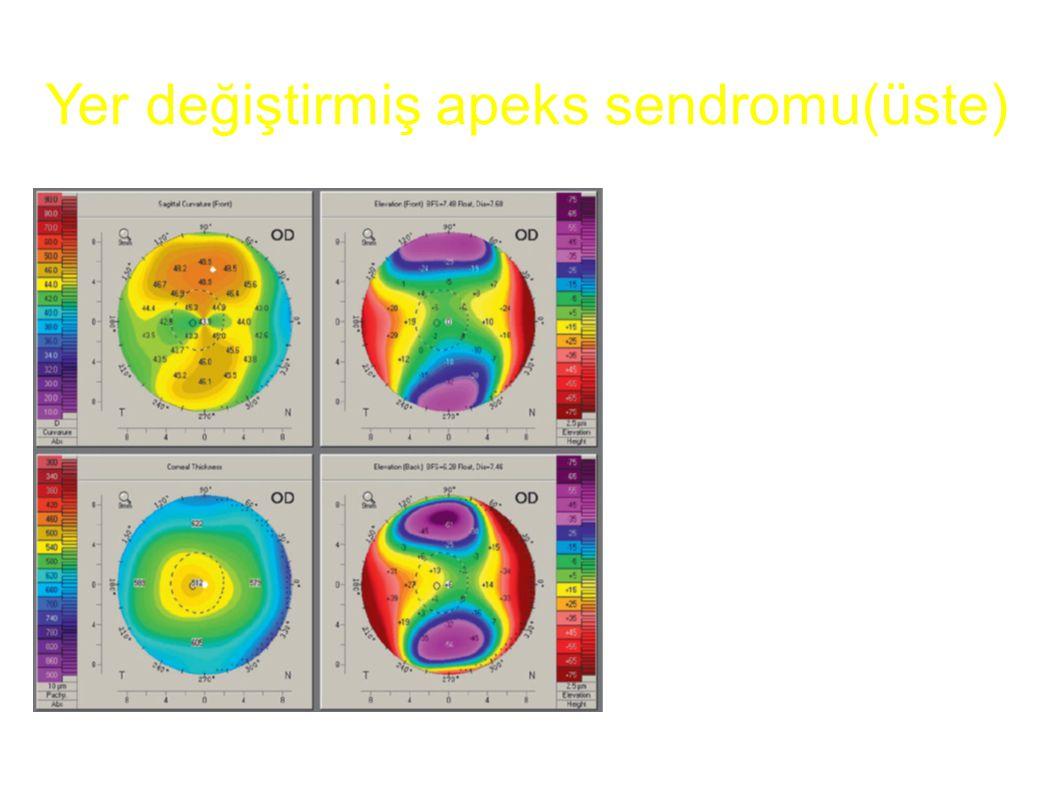 Yer değiştirmiş apeks sendromu(üste)