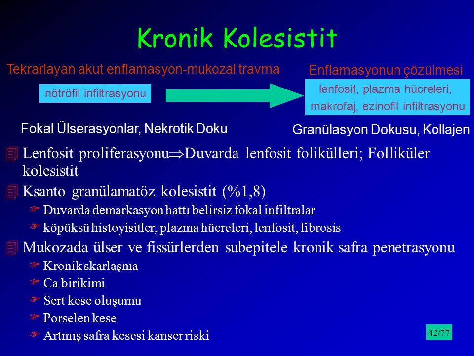 Kronik Kolesistit Tekrarlayan akut enflamasyon-mukozal travma. Enflamasyonun çözülmesi. lenfosit, plazma hücreleri,