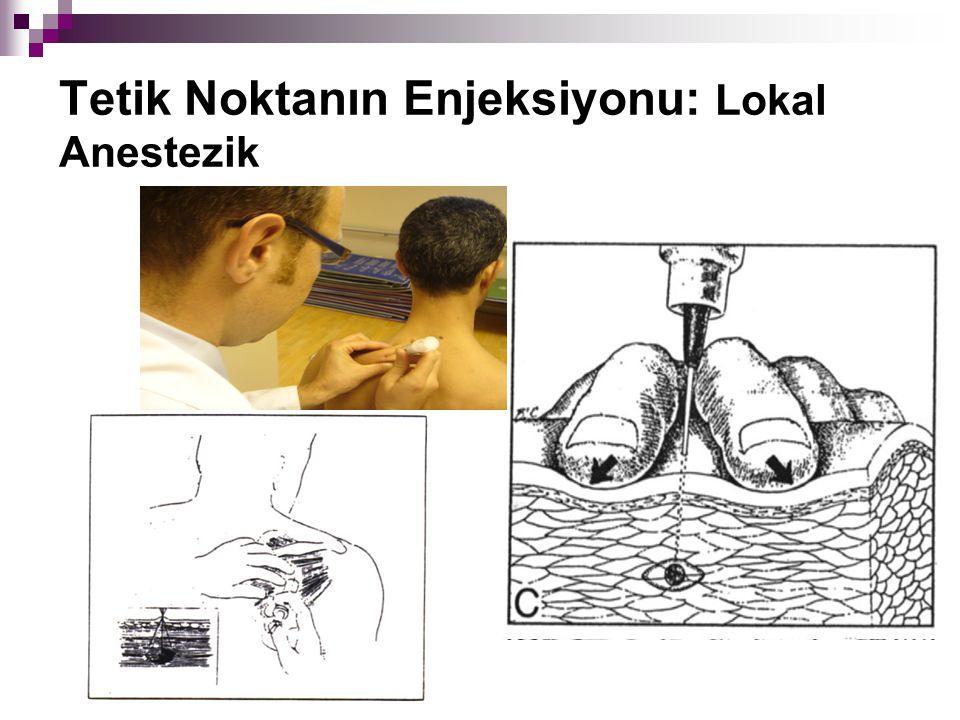 Tetik Noktanın Enjeksiyonu: Lokal Anestezik