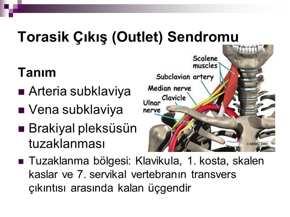 Torasik Çıkış (Outlet) Sendromu
