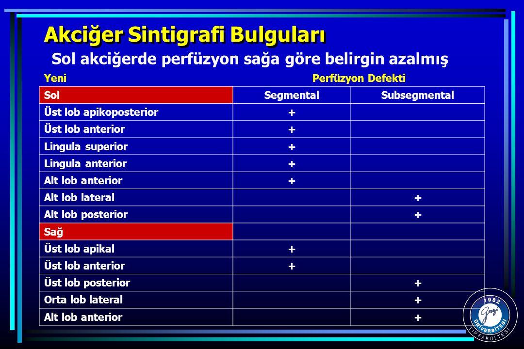 Akciğer Sintigrafi Bulguları