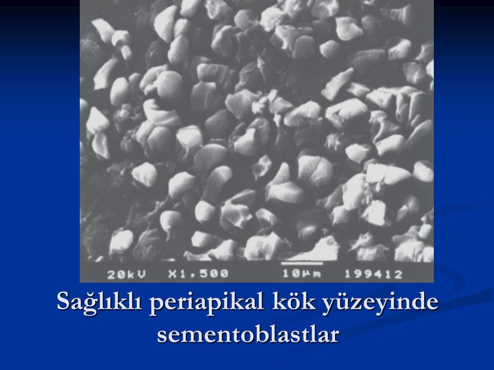 Sağlıklı periapikal kök yüzeyinde sementoblastlar