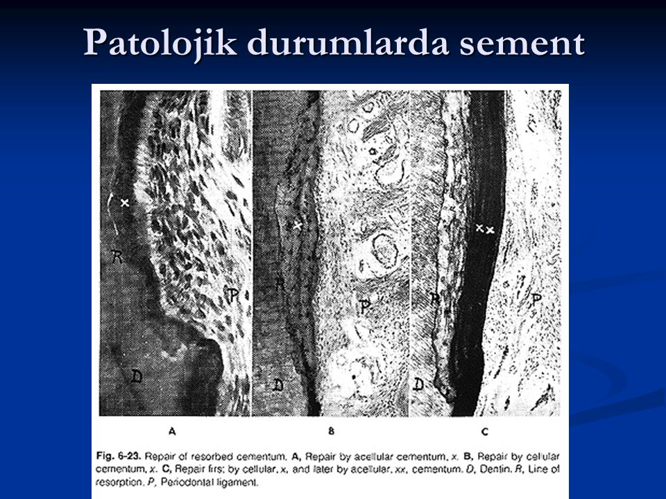 Patolojik durumlarda sement