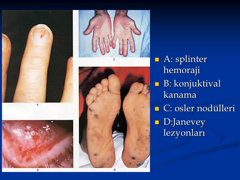 A: splinter hemoraji B: konjuktival kanama C: osler nodülleri D:Janevey lezyonları