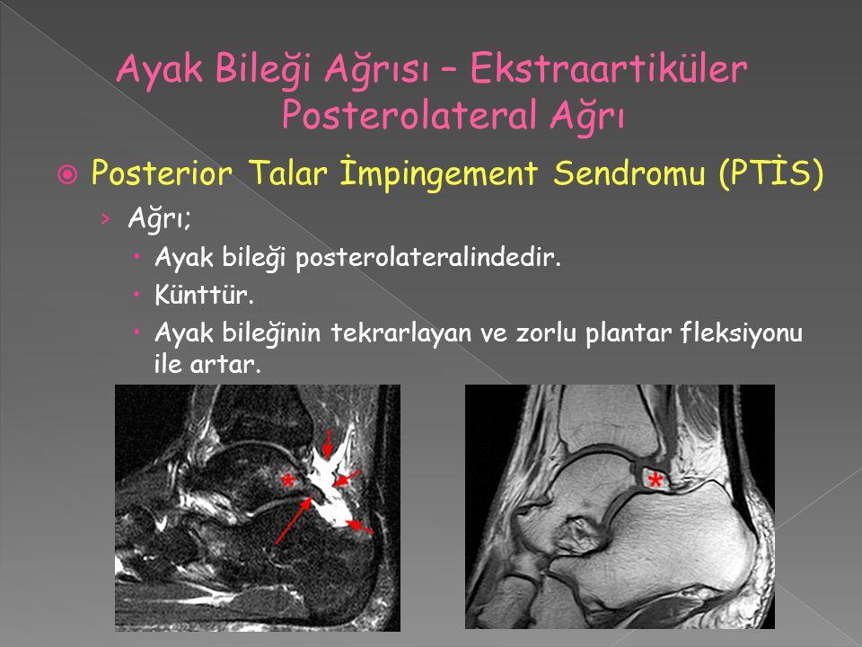 Ayak Bileği Ağrısı – Ekstraartiküler Posterolateral Ağrı
