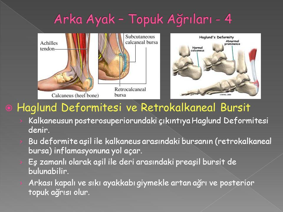 Arka Ayak – Topuk Ağrıları - 4