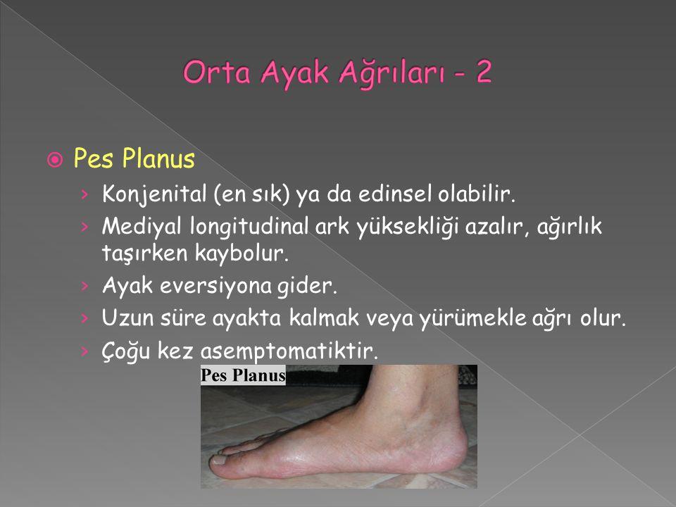 Orta Ayak Ağrıları - 2 Pes Planus