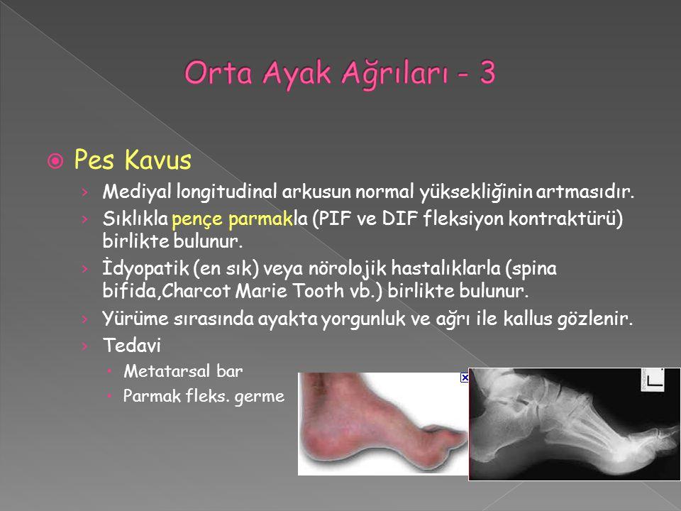 Orta Ayak Ağrıları - 3 Pes Kavus