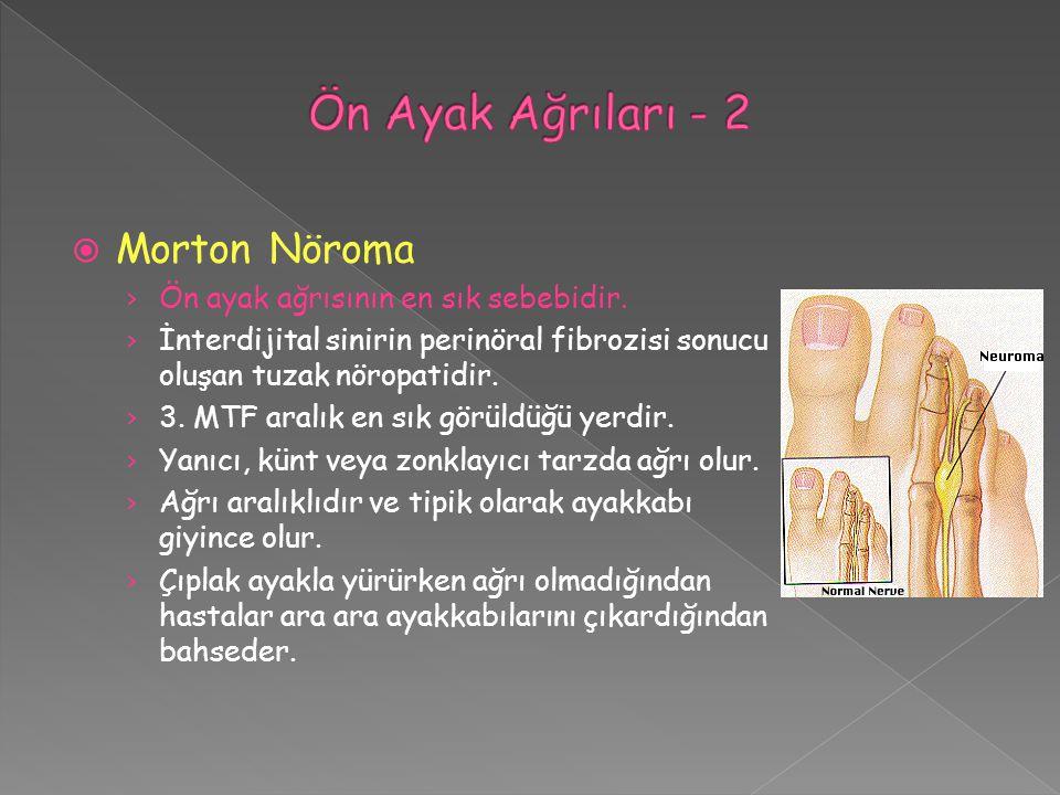 Ön Ayak Ağrıları - 2 Morton Nöroma Ön ayak ağrısının en sık sebebidir.