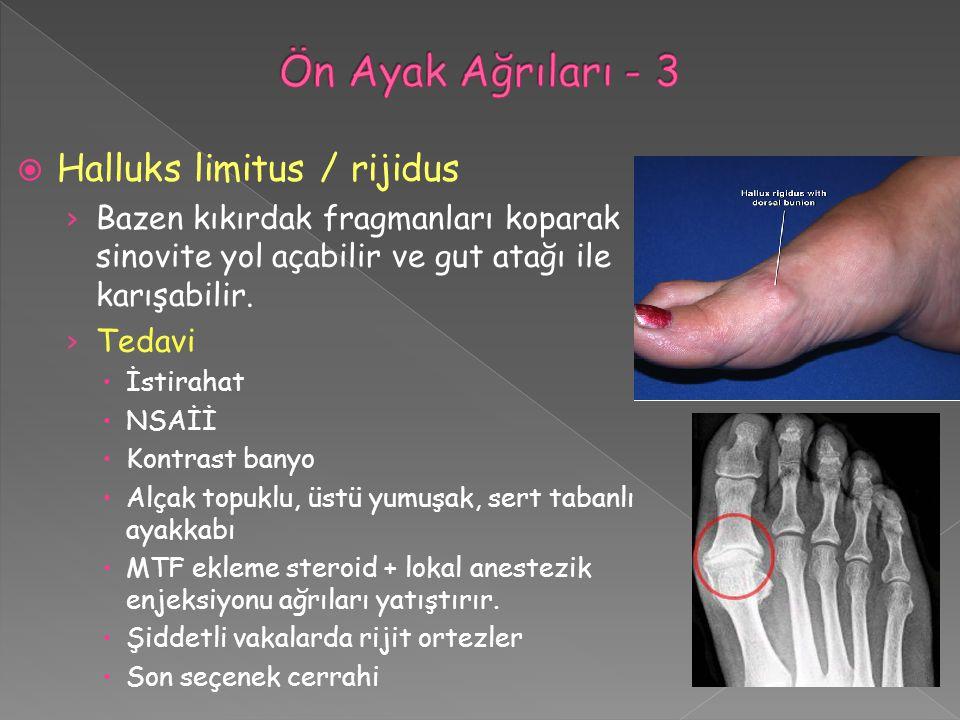 Ön Ayak Ağrıları - 3 Halluks limitus / rijidus