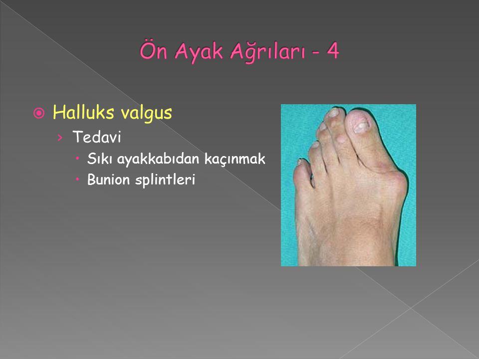 Ön Ayak Ağrıları - 4 Halluks valgus Tedavi Sıkı ayakkabıdan kaçınmak
