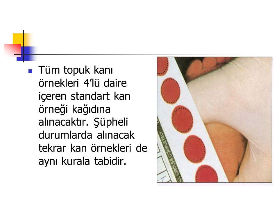 Tüm topuk kanı örnekleri 4'lü daire içeren standart kan örneği kağıdına alınacaktır.