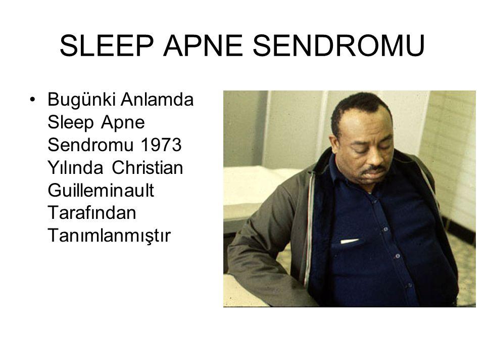 SLEEP APNE SENDROMU Bugünki Anlamda Sleep Apne Sendromu 1973 Yılında Christian Guilleminault Tarafından Tanımlanmıştır.