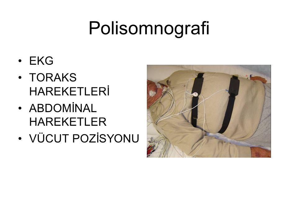 Polisomnografi EKG TORAKS HAREKETLERİ ABDOMİNAL HAREKETLER