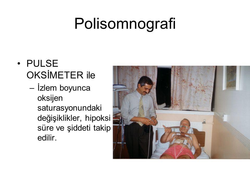 Polisomnografi PULSE OKSİMETER ile