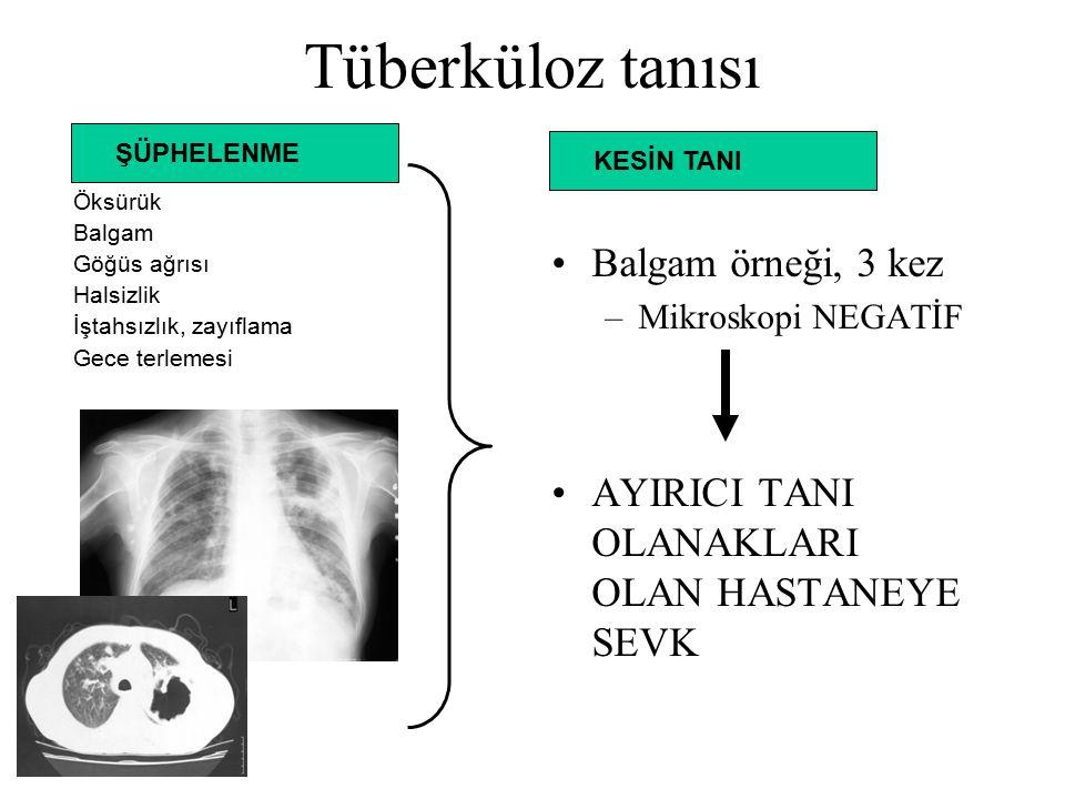 Tüberküloz tanısı Balgam örneği, 3 kez
