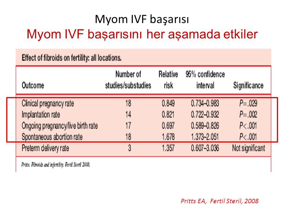 Myom IVF başarısı Myom IVF başarısını her aşamada etkiler