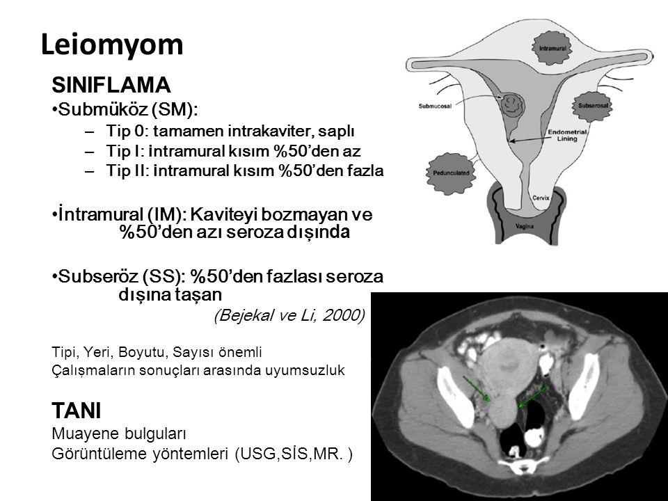 Leiomyom SINIFLAMA TANI Submüköz (SM):